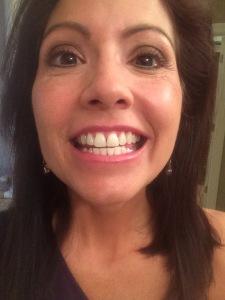 Weird cheesy grin?! Here's why!