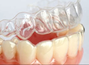 How clear braces fit on the teeth!