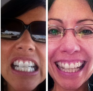 Pic 1- Before braces. Pic 2- Midway through.